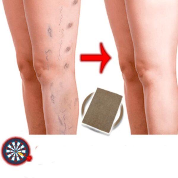 Adesivo Para Remoção de Varizes Tratamento Antialérgico Ervas Naturais 24 Peças - Loja Oficial | XploudShop